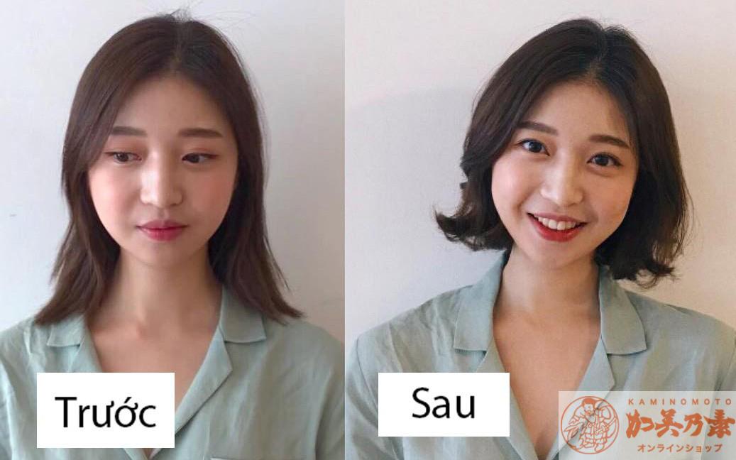 Tóc mỏng và cách cải thiện