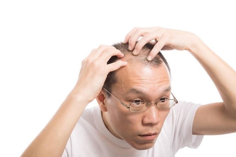 Bệnh rụng tóc có chữa được không?