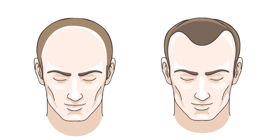 các dạng hói đầu