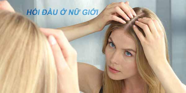 Cách chữa hói đầu ở nữ giới