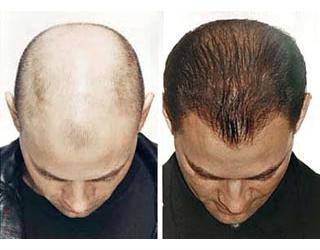 Tác hại của cấy tóc