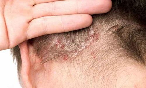 Nhiễm trùng da đầu