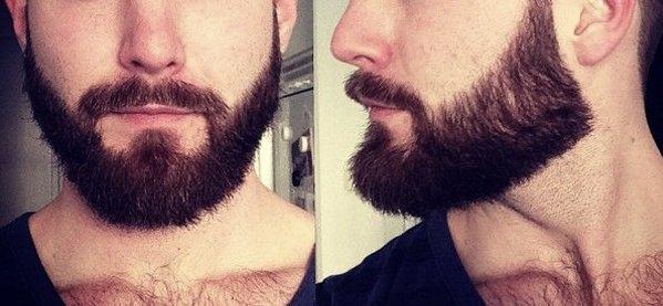 tạo ra môi trường thích hợp cho râu