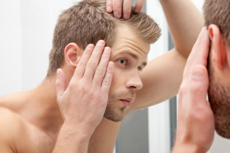 rụng tóc nam giới