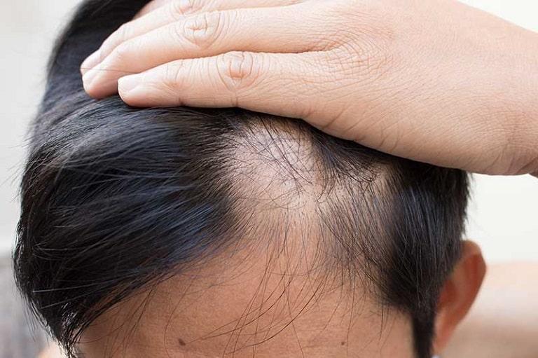 Rụng tóc pelade