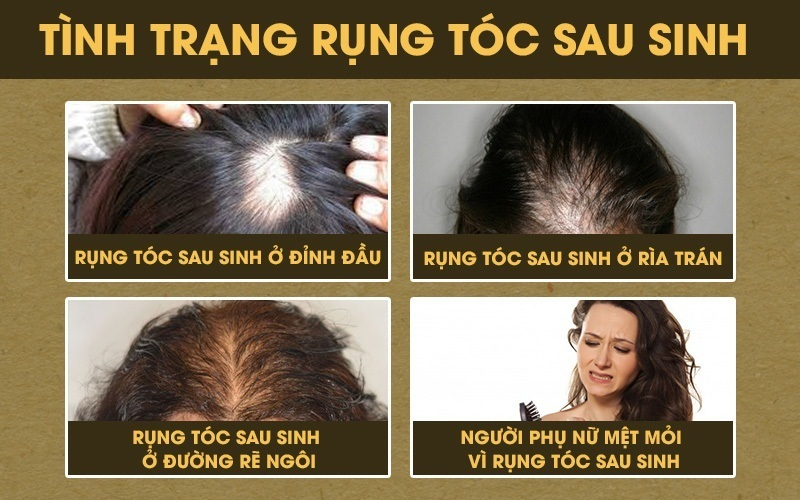 rụng tóc sau sinh ở phụ nữ