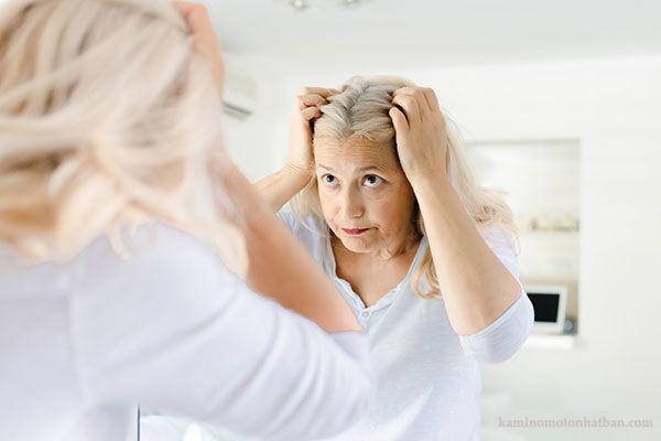 Rụng tóc thời kỳ mãn kinh