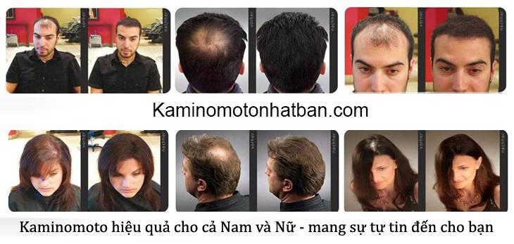 5 Nguyên nhân gây rụng tóc bạn cần biết