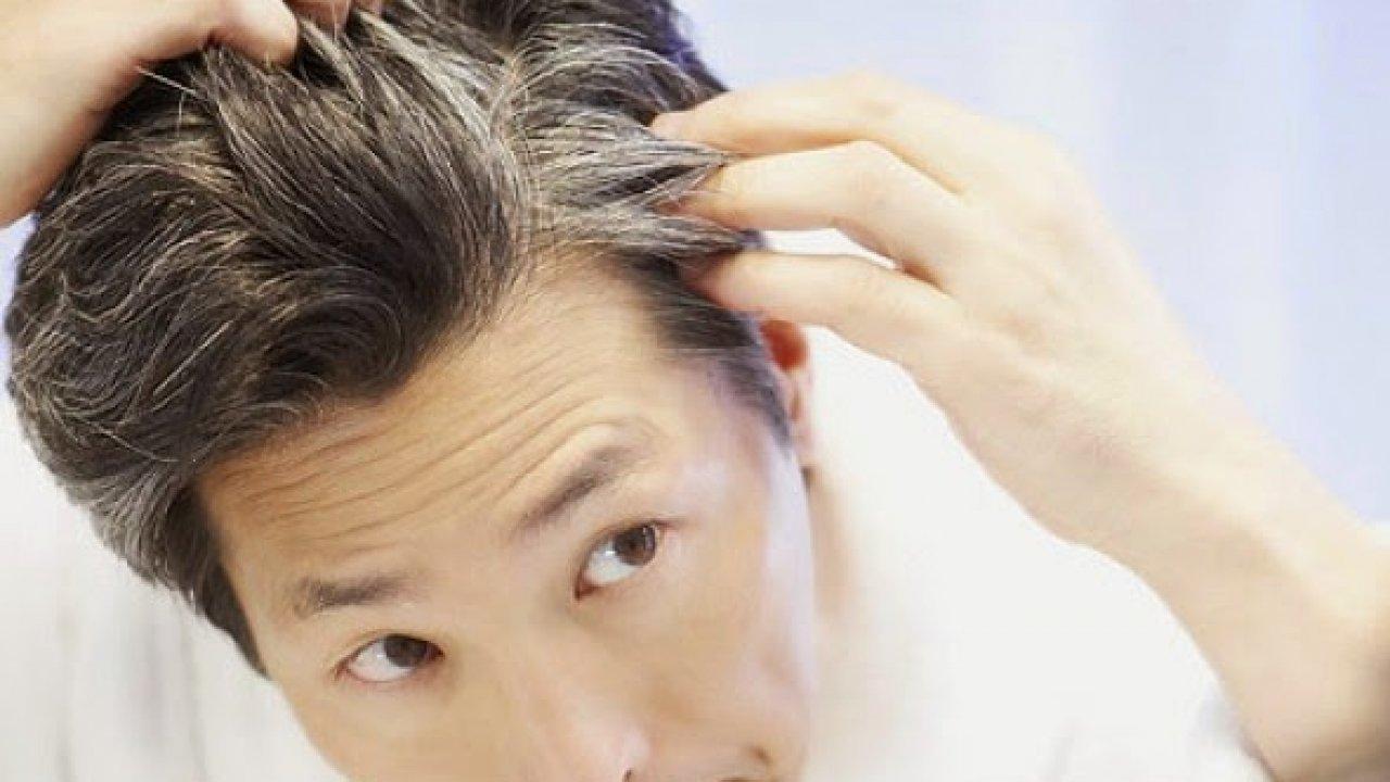Tóc bạc hai bên mang tai