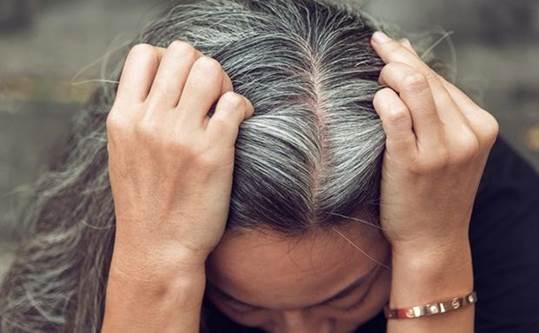 Tóc bạc ở đỉnh đầu và sau gáy