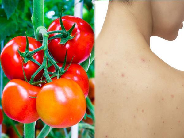 trị mụn ở lưng bằng cà chua