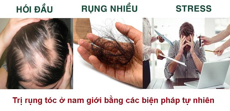Trị rụng tóc ở nam giới bằng các biện pháp tự nhiên