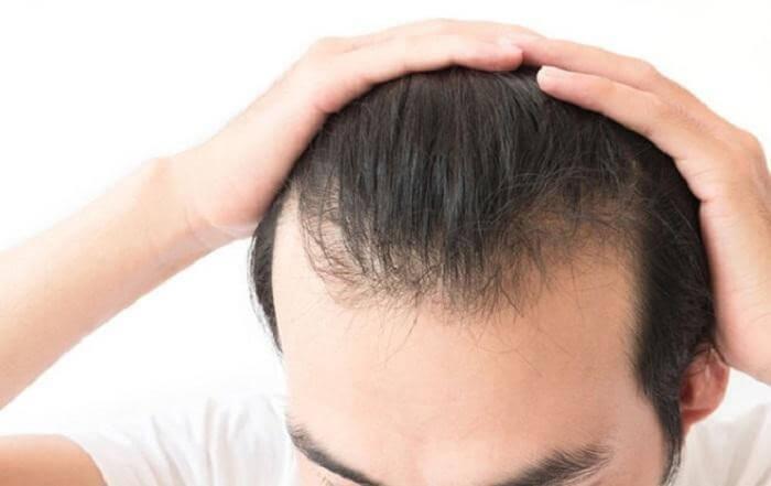 vuốt tóc nhiều có bị hói không